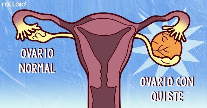 8 maneras de reducir los quistes ovaricos banner