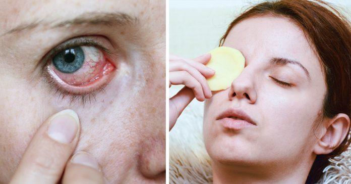 blanquear los ojos remedios banner