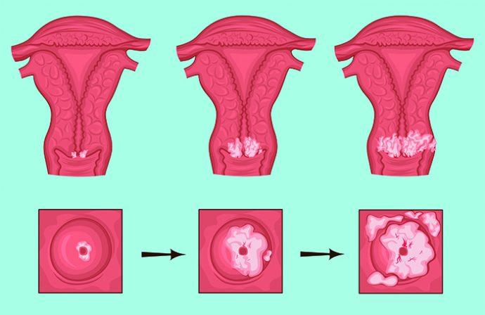 cancer cuello utero