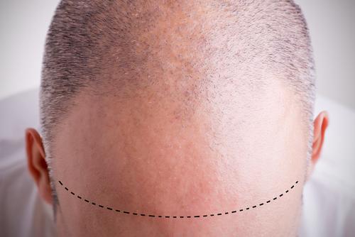 Los científicos podrían haber encontrado la respuesta para curar las canas y la calvicie