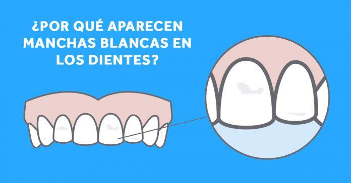 razones por las que aparecen manchas blancas en los dientes y como eliminarlas banner