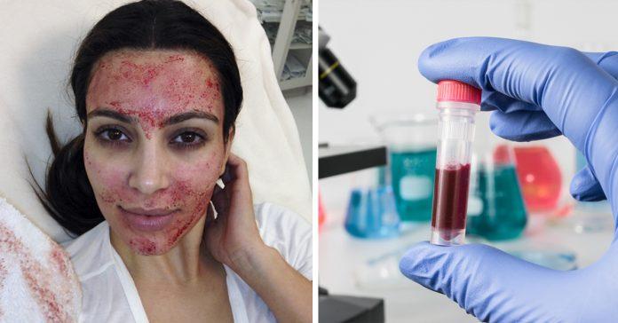 tratamiento de belleza sangriento banner
