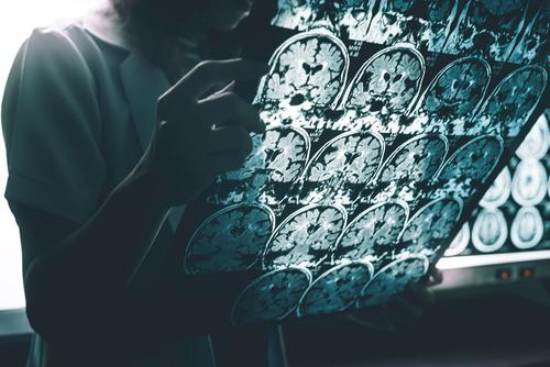Despertarse en mitad de la noche puede significar un problema del cerebro