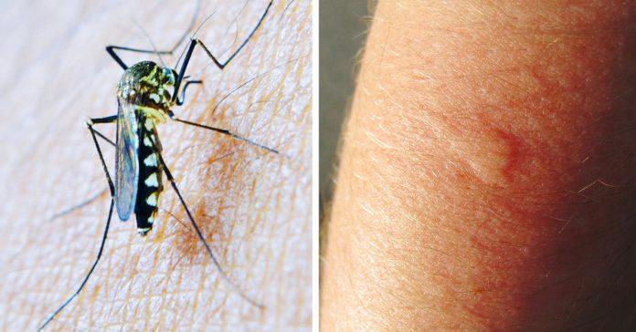 7 razones por as cuales los mosquitos solo te pican a ti banner