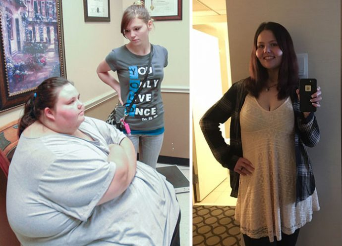 40 Imágenes del giro radical de personas que perdieron más de 200kg