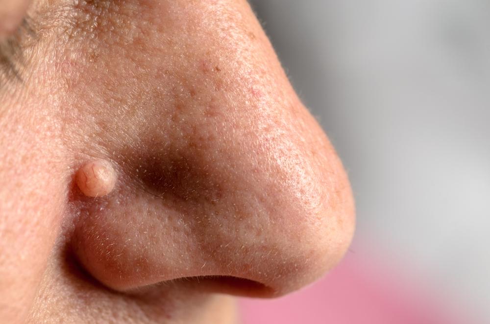6 Cosas que jamás deberíamos hacer en nuestra piel según los dermatólogos