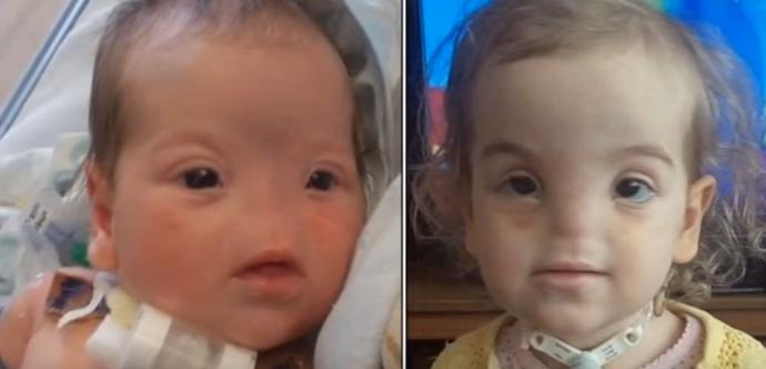 Los 10 Niños con los casos más extraños del mundo cuyas historias y condiciones han dado la vuelta al planeta