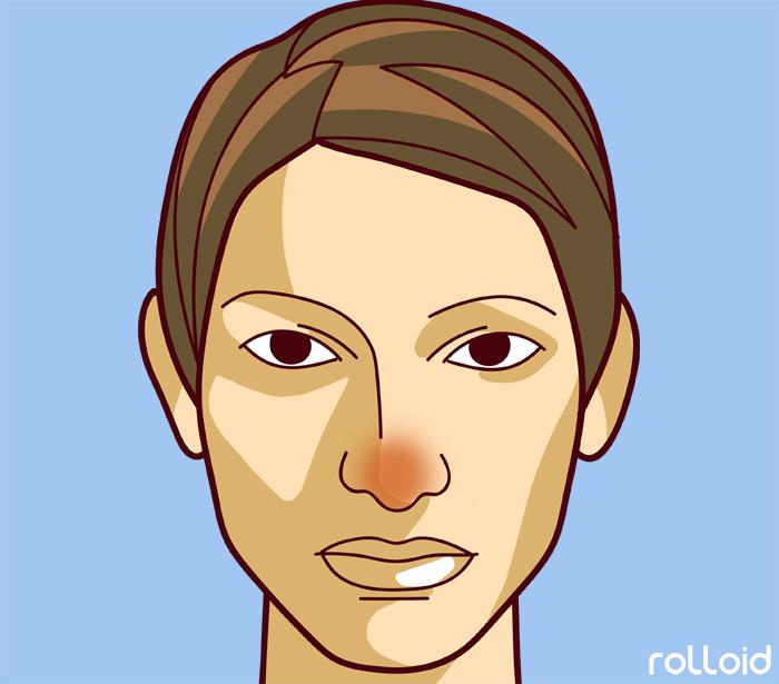 11 defectos de tu piel que dicen mucho mas de tu salud de lo que pensabas 02