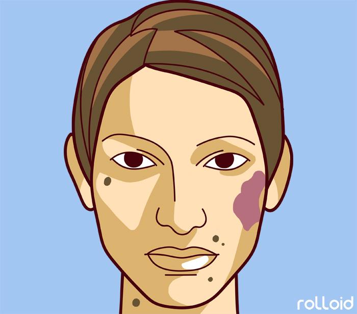 11 defectos de tu piel que dicen mucho mas de tu salud de lo que pensabas 04