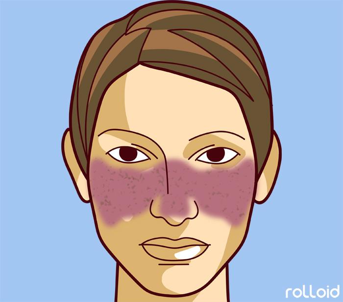 11 defectos de tu piel que dicen mucho mas de tu salud de lo que pensabas 05