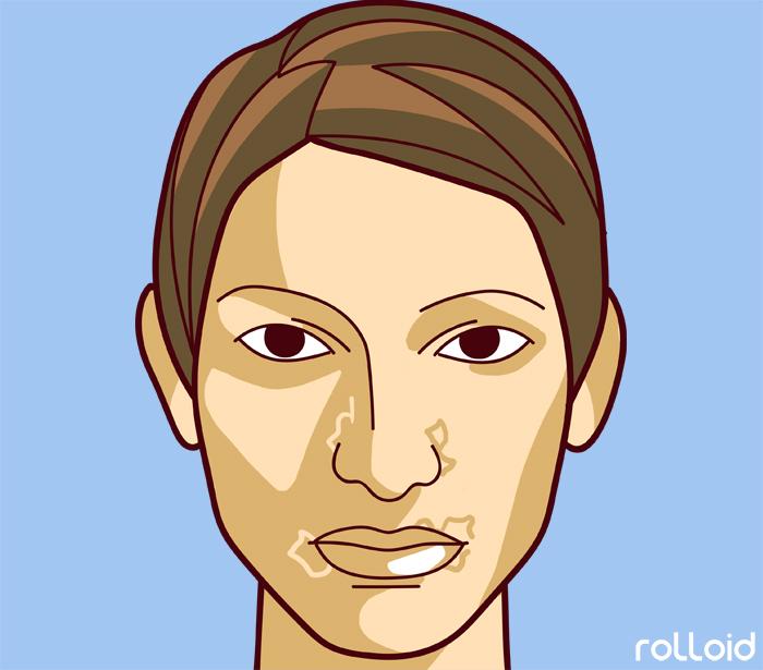 11 defectos de tu piel que dicen mucho mas de tu salud de lo que pensabas 06