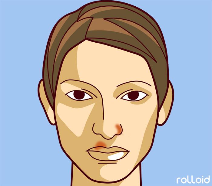 11 defectos de tu piel que dicen mucho mas de tu salud de lo que pensabas 07
