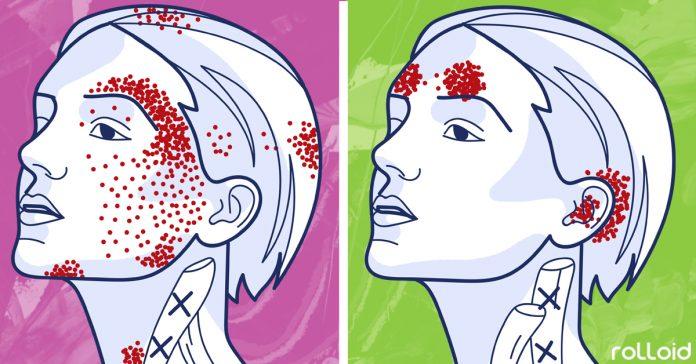 7 erores dieta que generan dolores cabeza migranas banner