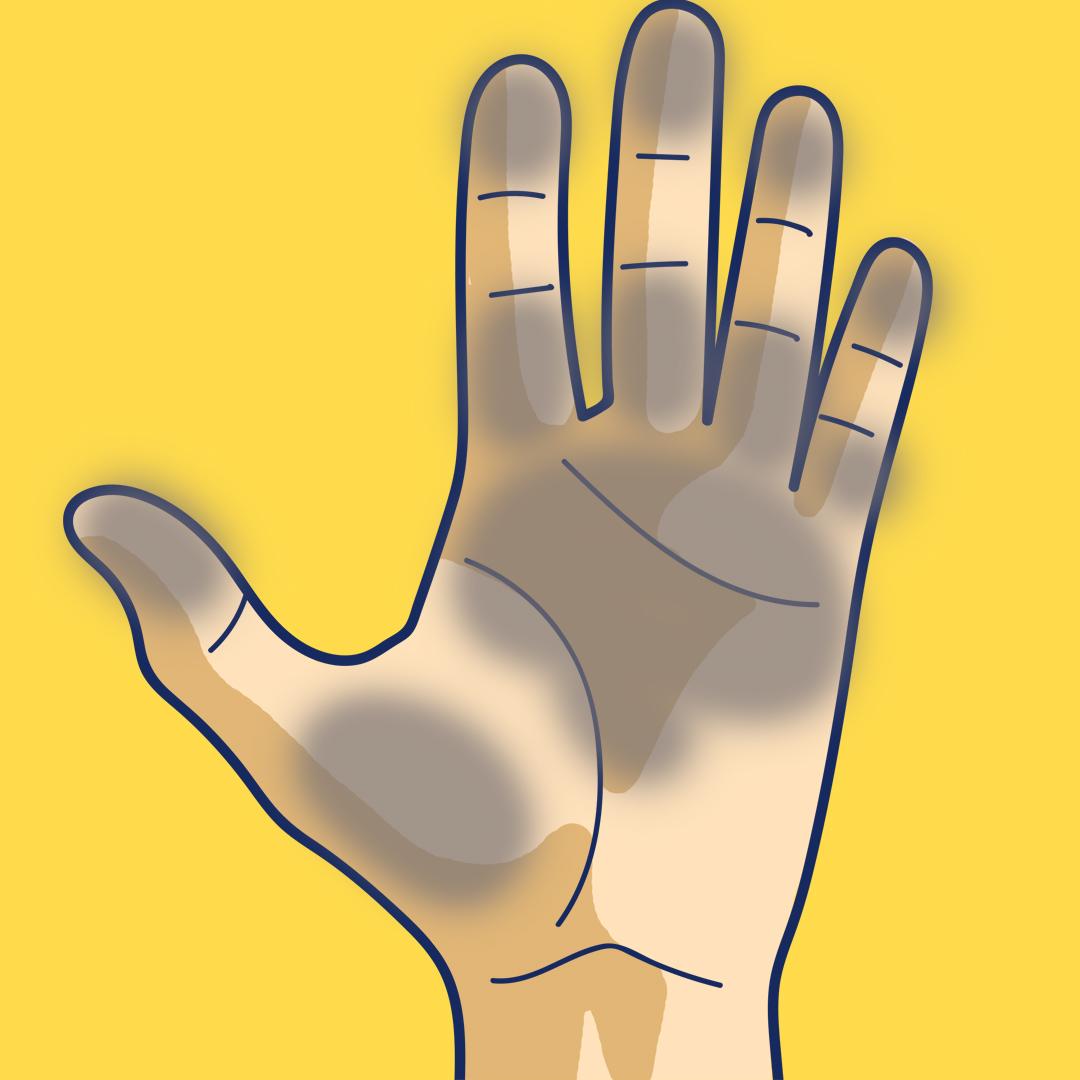 todo lo que tus manos intentan decirte sobre tu salud 03