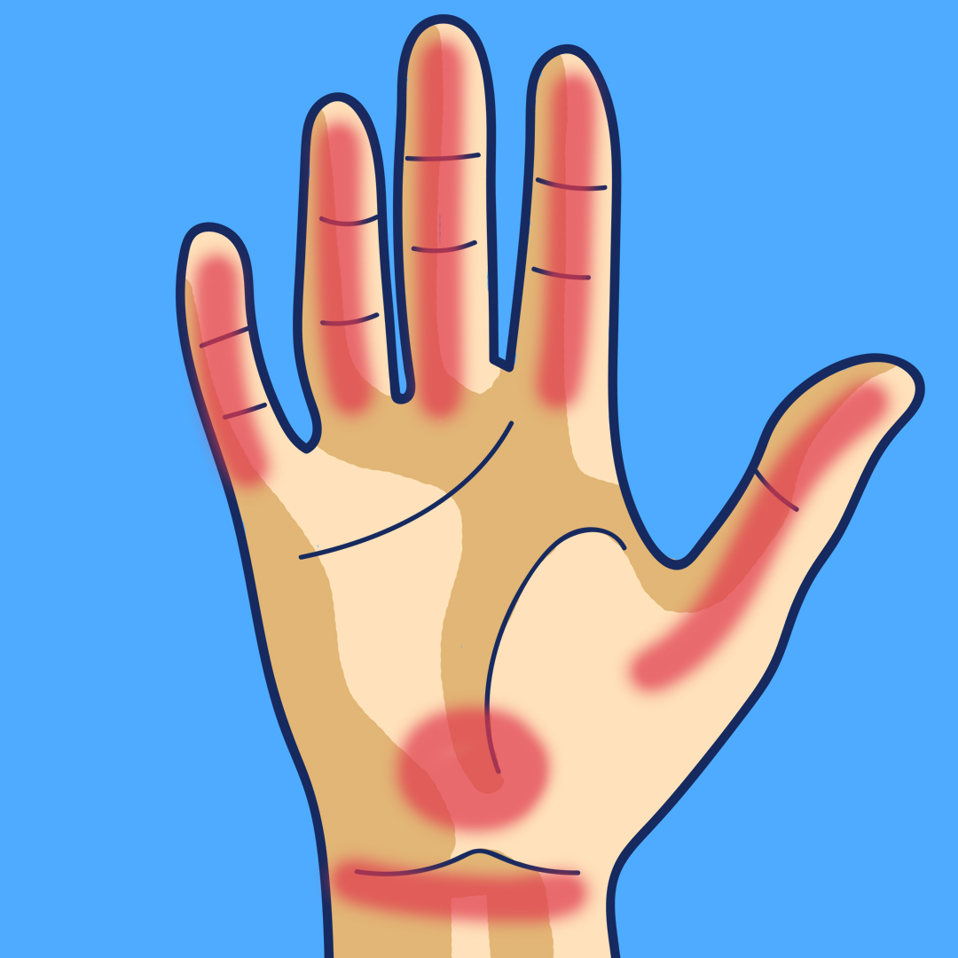 todo lo que tus manos intentan decirte sobre tu salud 04