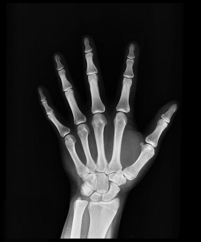 5 Cosas y señales que las manos te suelen decir sobre el estado del cuerpo