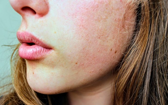 5 Trucos rápidos para la piel y conseguir levantarse radiante