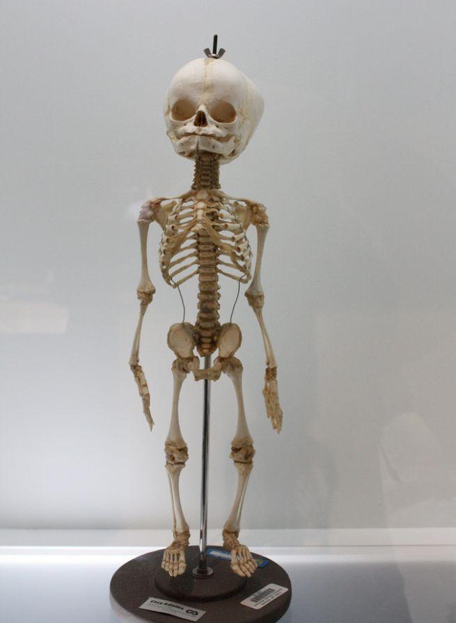 30 Datos asombrosos que seguramente no sabías sobre el cuerpo humano