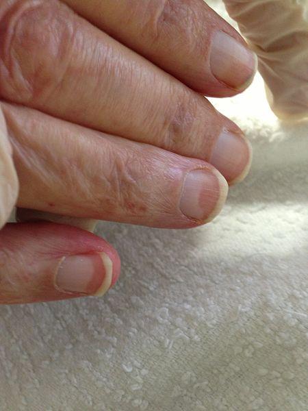 10 Cosas típicas que pueden aparecer en las uñas y sus trastornos