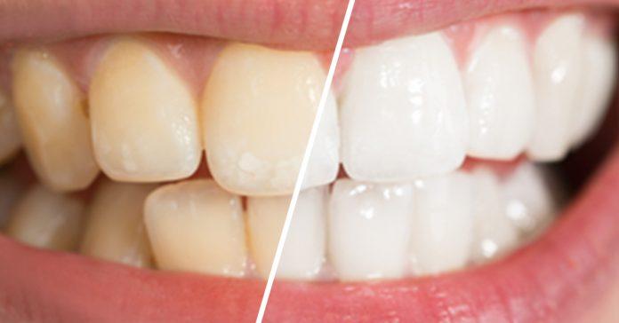 8 formas sorprendentes de dientes mas blancos banner