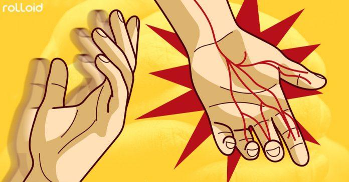 8 sintomas problemas manos