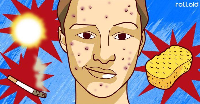 cosas afectan acne cara banner