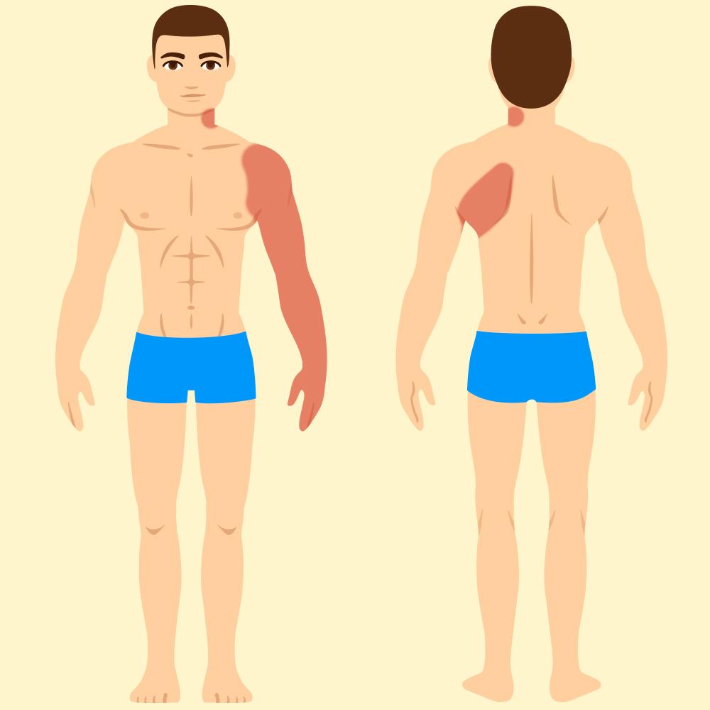 7 Razones por las que suelen aparecerte los dolores más típicos