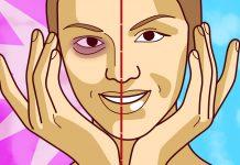 trucos eliminar ojeras bolsas ojos