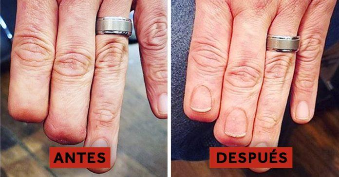 50 tatuajes que han cubierto perfectamente las cicatrices y marcas de nacimiento de sus duenos banner