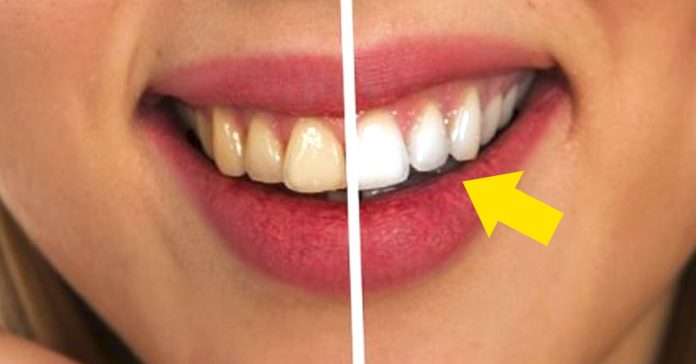 trucos recuperar blanco esmalte dientes